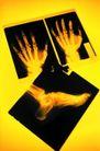 医学治疗0080,医学治疗,医学医药,手掌 脚掌 透视