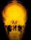医疗对象0022,医疗对象,医学医药,人脑 头颅 骨骼