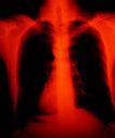 医疗对象0024,医疗对象,医学医药,片子 骨头 胸腔