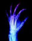医疗对象0028,医疗对象,医学医药,肢体 手骨 X片