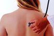 医疗对象0033,医疗对象,医学医药,背部 听诊器 后背