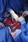 医疗检查0151,医疗检查,医学医药,动手术