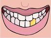 牙齿0080,牙齿,身体器官,