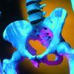 医疗与技术0015,医疗与技术,医学医药,人的骨骼 盆骨