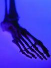 医疗与技术0017,医疗与技术,医学医药,骷髅 脚骨