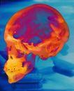 国外医疗0016,国外医疗,医学医药,头骨图 红色头骨