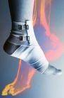 国外医疗0019,国外医疗,医学医药,脚部 包着布